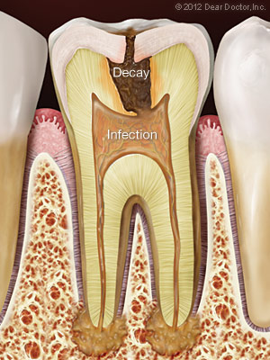 Root Canal Therapy Waterloo Ontario