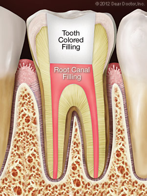 Root Canal Treatment Waterloo
